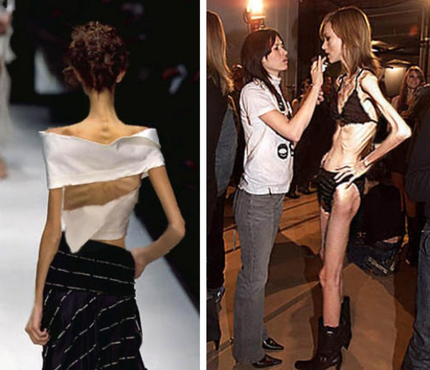 Extreme Skinny Fashion Girls