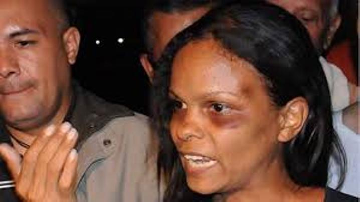 Marvinia Jiménez was brutally beaten by the Venezuela National Guard during a demonstration.